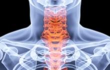 """让椎体""""再生"""",我国成功植入全球首例全颈椎的3D打印人工颈椎椎"""