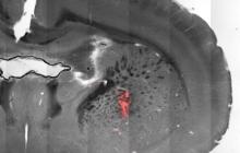 用温度控制脑部活动,磁热刺激技术可用于治疗精神疾病