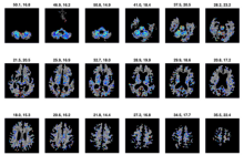 这款MRI分析软件,比现有技术早15年诊断出老年痴呆