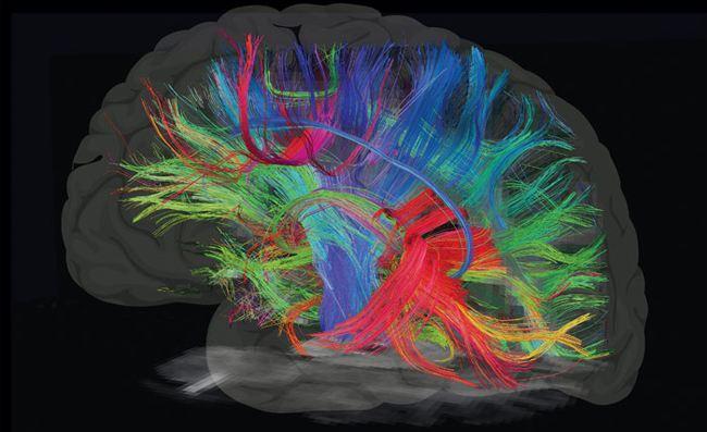 性取向是先天还是后天形成?研究团队利用脑成像技术让你看见答案