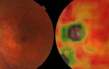 科学家用AI系统检测眼疾,比专业医生和验光师还强