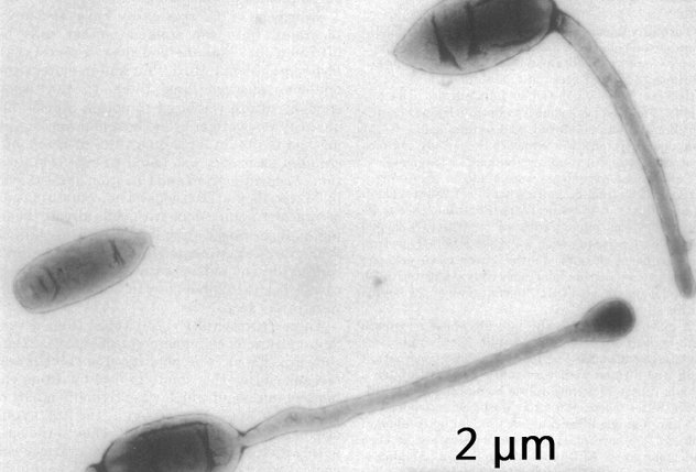 科学家发现部分人口臭是因为基因突变,可以被遗传且无法治愈