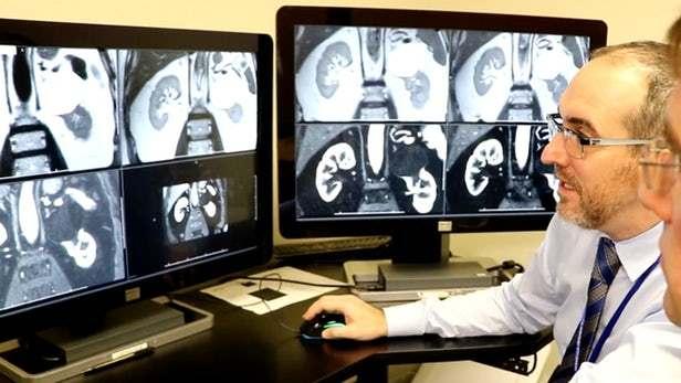 医学研究团队改进现有磁共振成像技术,融入算法分析以避免病人进行活检