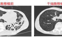 同济大学临床干细胞移植试验成功,实现全球首例人类肺脏再生