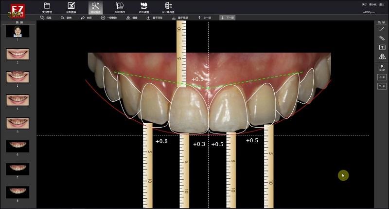 知北信息杨眉:精准定位口腔诊疗行业痼疾,合AI与3D打印之力去变革优化