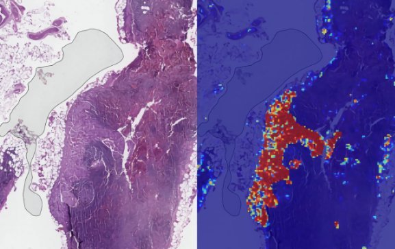 谷歌 AI医疗新成果:将转移性乳腺癌检测准确率推向了几乎完美的99%