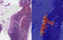 谷歌AI医疗新成果:将转移性乳腺癌检测准确率推向了几乎完美的99%