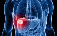 全球首个获FDA认定治疗NASH的药物将于下半年申请上市!
