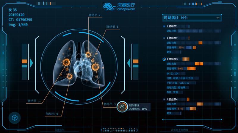 深睿医疗乔昕:AI医疗才起步,说变革尚早